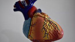 ESC: Vascepa Reduces Patients' Arterial Plaque