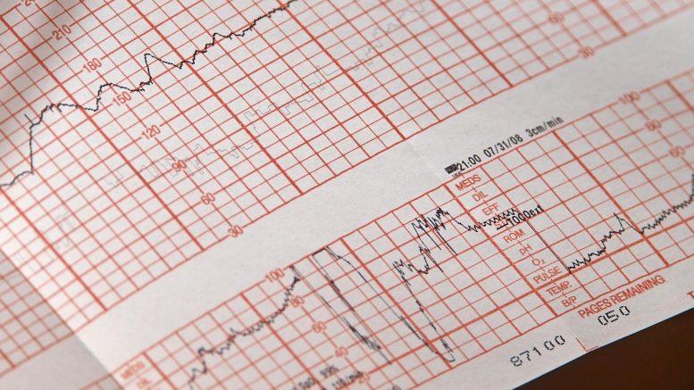 No-Cost Preventive Screenings From CVS Health